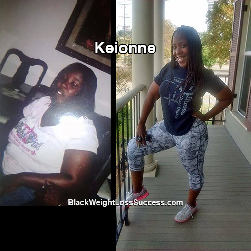 Keionne before and after
