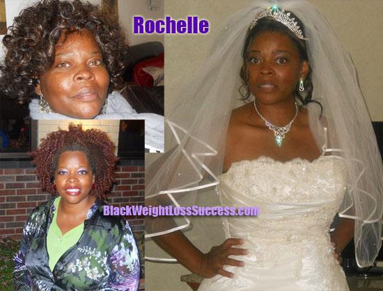 Rochelle weight loss surgery