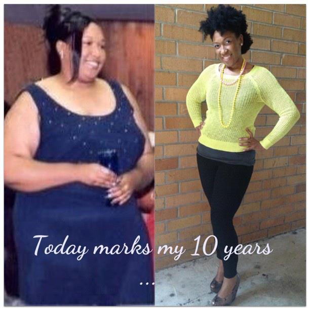 regina weight loss surgery
