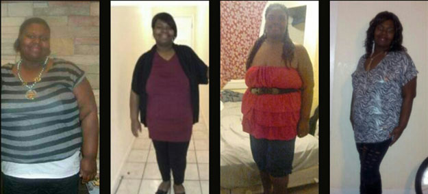 Michelle weight loss surgery