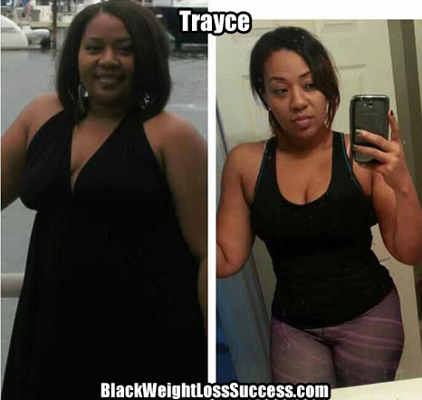 Trayce Madre weight loss story