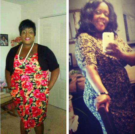 carmen weight loss surgery