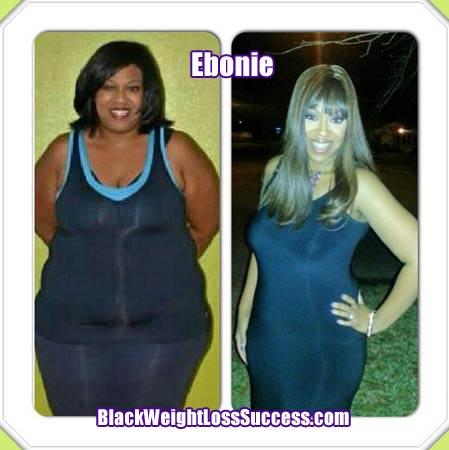 Ebonie weight loss surgery