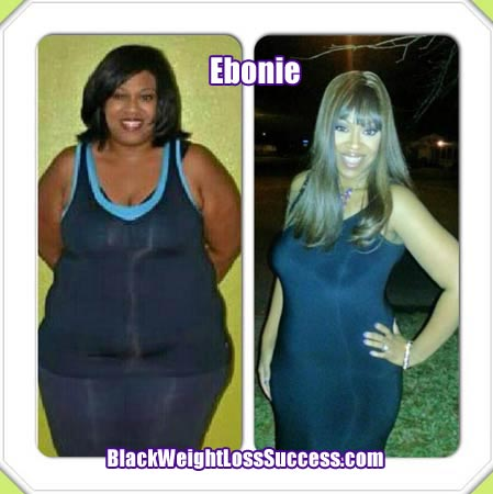 Ebonie weight loss surgery