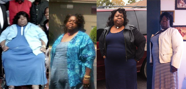 Veronica gastric bypass