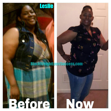 Leslie weight loss before after