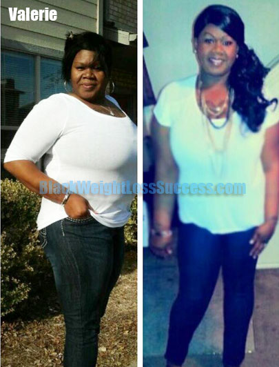 Valerie weight loss surgery