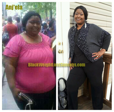 Anjela before after weight loss