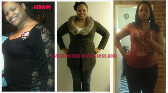 arneice weight loss before and after photos