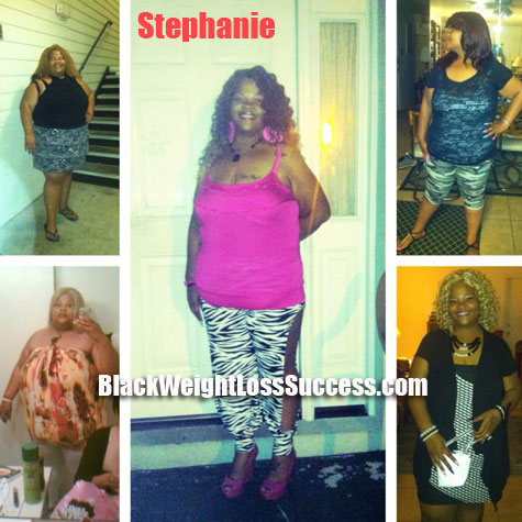 Stephanie weight loss surgery
