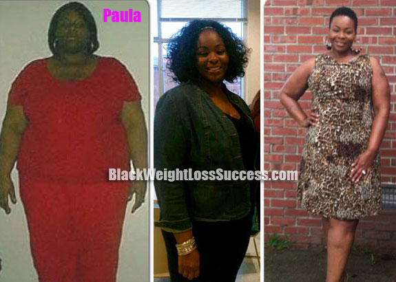 Paula weight loss surgery