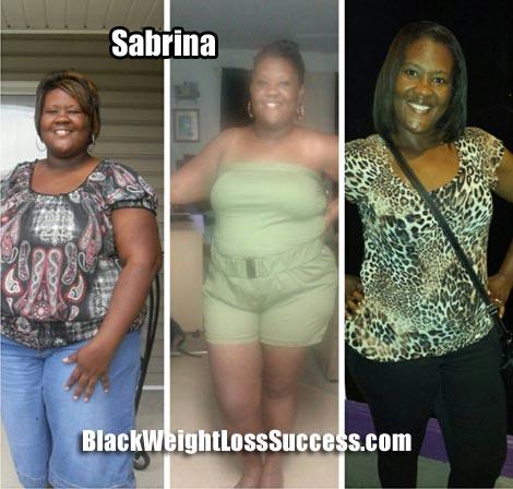 Sabrina weight loss surgery
