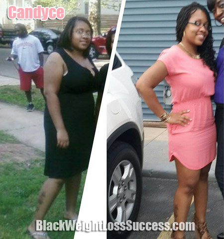 Candyce weight loss pictures