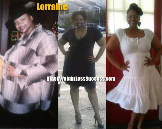 Lorraine Lost 204 Pounds Black Weight Loss Success