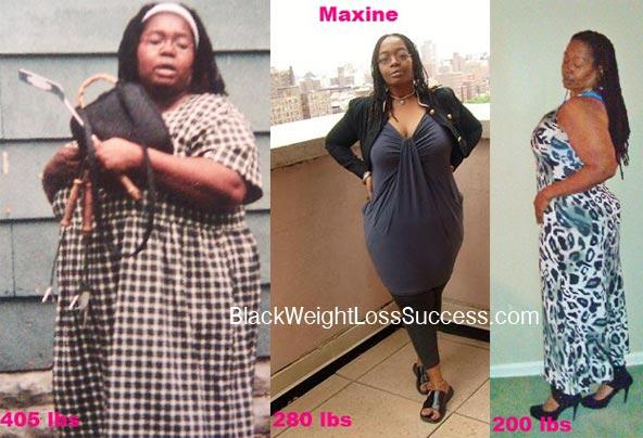 Maxine lapband weight loss surgery