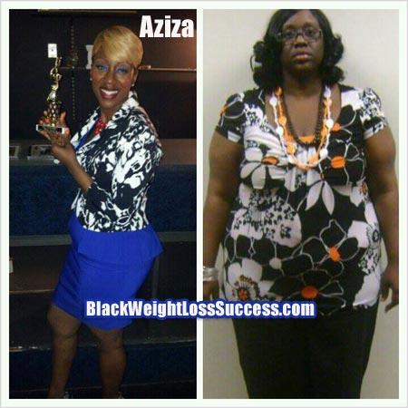 Aziza weight loss surgery story
