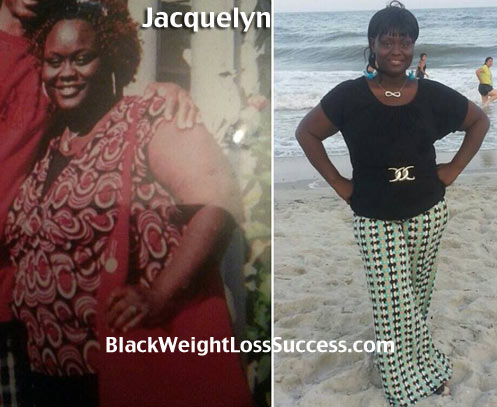 Jacquelyn weight loss story