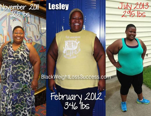 Lesley weight loss journey