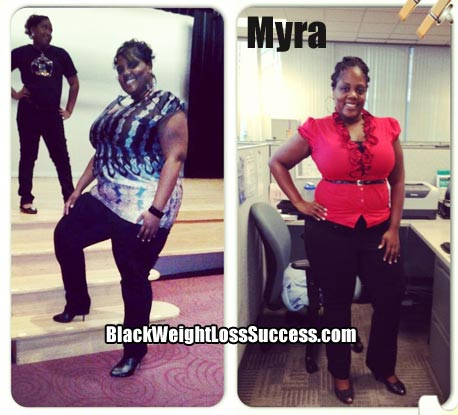 Myra weight loss before & after