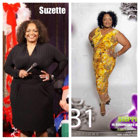 Suzette weight loss story