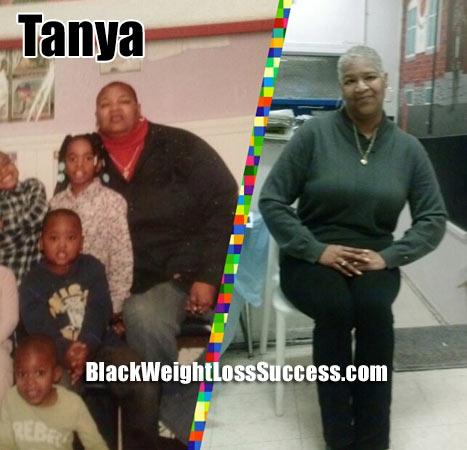 Tanya gastric bypass surgery
