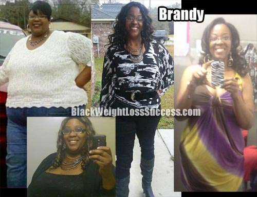 Brandy weight loss surgery photos