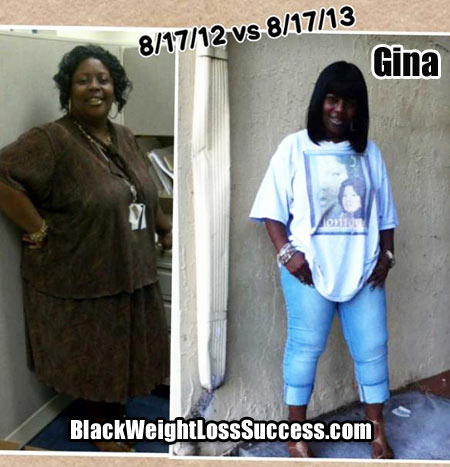 Gina gastric bypass