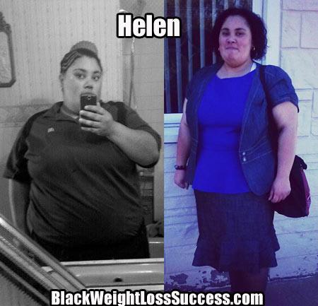 Helen weight loss success story