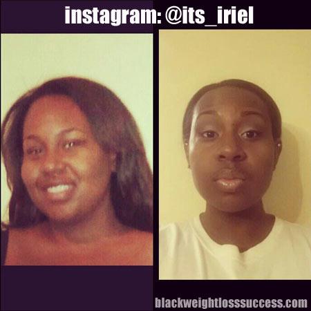 Iriel weight loss story