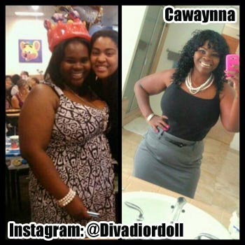 Cawaynna weight loss surgery