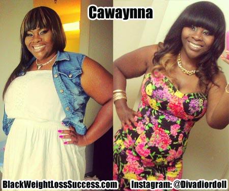 Cawaynna weight loss surgery