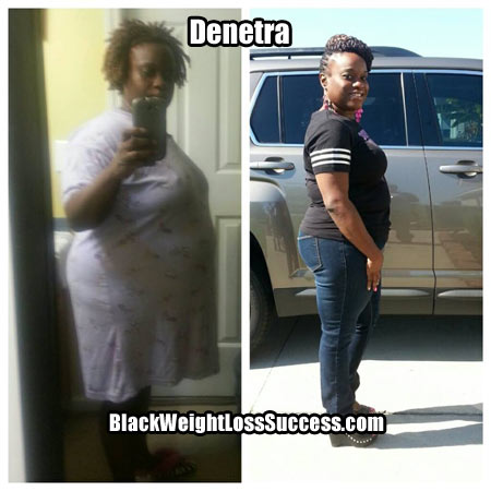 Denetra before and after photos