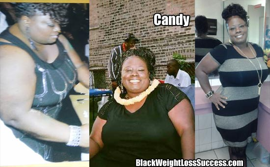 Candy weight loss story
