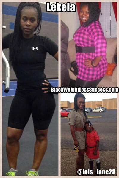 Lekeia before and after photos