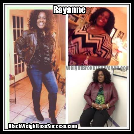 Rayanne before and after photos