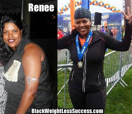 Renee before and after photos