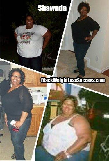 shawnda weight loss surgery