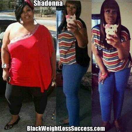 Shadonna weight loss surgery