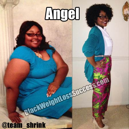 Angel before and after weight loss surgery