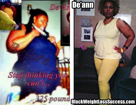De'ann Weight Loss surgery