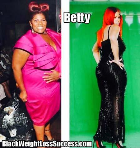 Betty weight loss surgery