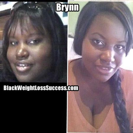 Brynn before and after