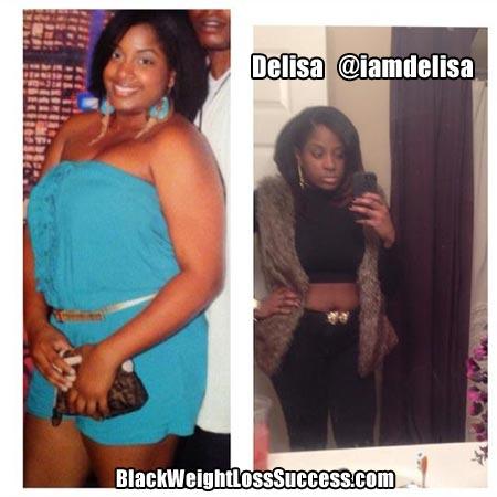 Delisa weight loss story