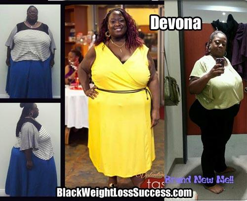 Devona weight loss