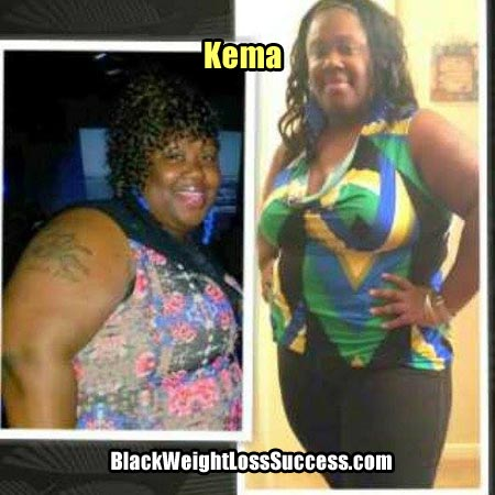 Kema before and after