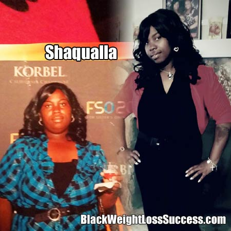 Shaqualla gastric sleeve results