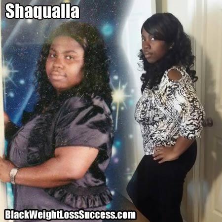 Shaqualla weight loss surgery