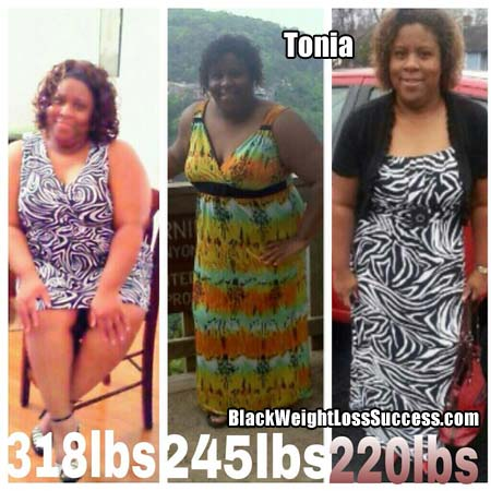 Tonia before and after weight loss