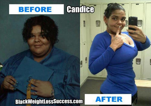 Candice extreme weight loss