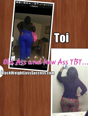 Toi gastric sleeve surgery